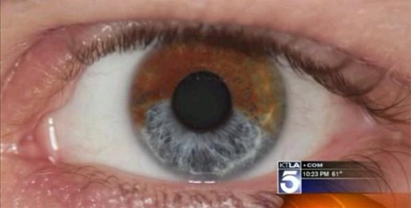 Lumineye. Procedimiento Laser para convertir nuestros ojos de color marrón en azul
