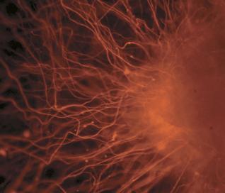 Científicos convierten células normales en células madre