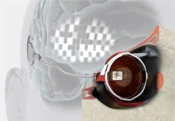 """Paciente ciega con ojo """"pre-bionico"""" consigue ver la luz"""